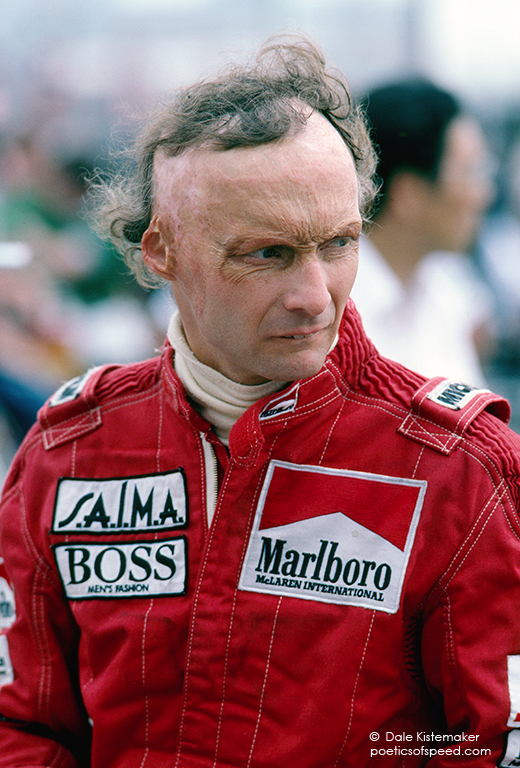 A Rare Image Of Lauda Showing The Full Effect Of His Burns
